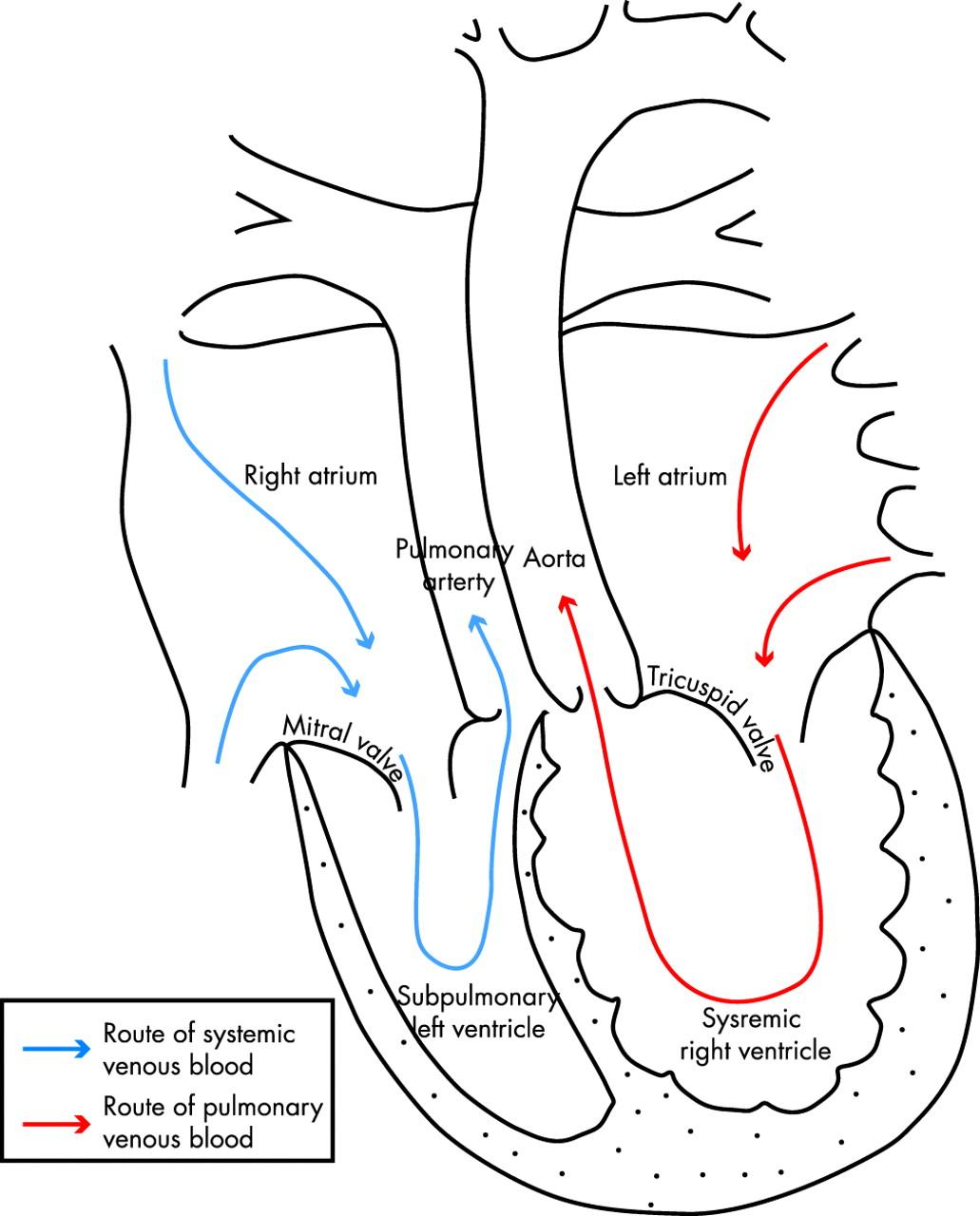 Pregnancy In Heart Disease Thorne 90 4 450 Heart