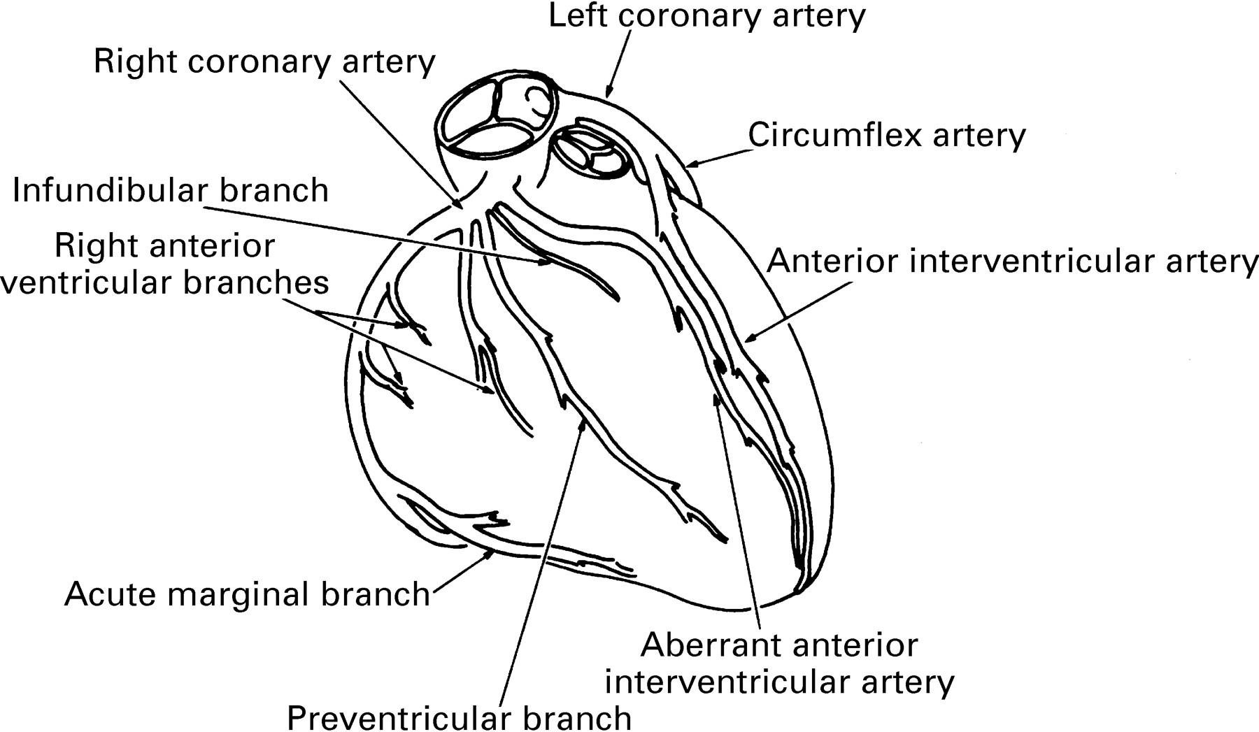 Coronary Arterial Anatomy In Tetralogy Of Fallot