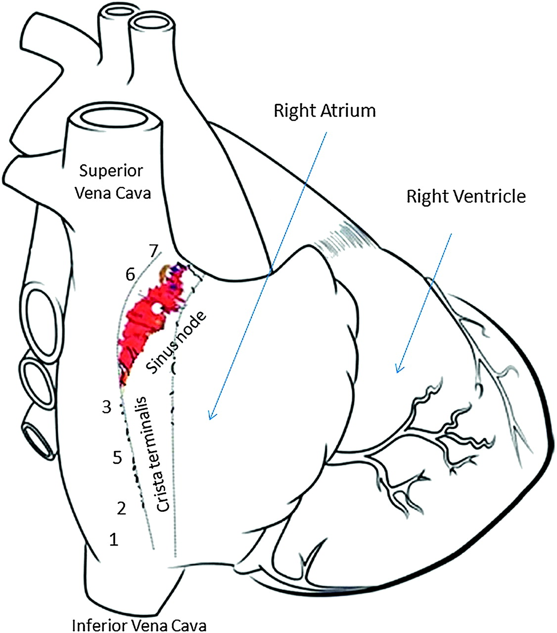 112 Location Of Subsidiary Atrial Pacemakers Following