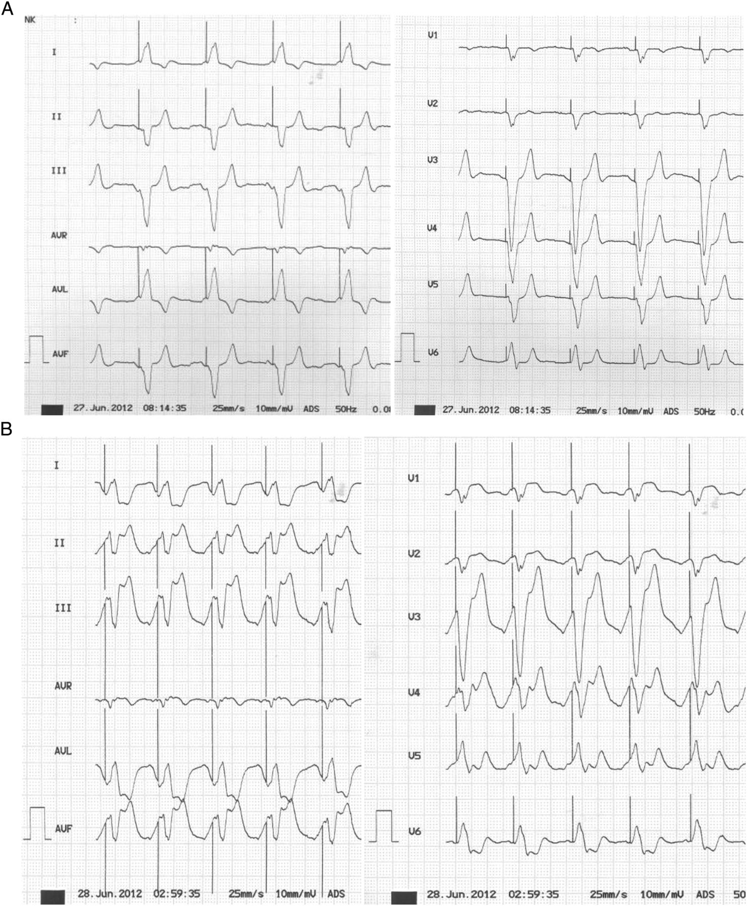 Acute Myocardial Infarction And Electrically Induced Left Bundle Branch Block Is A Diagnosis