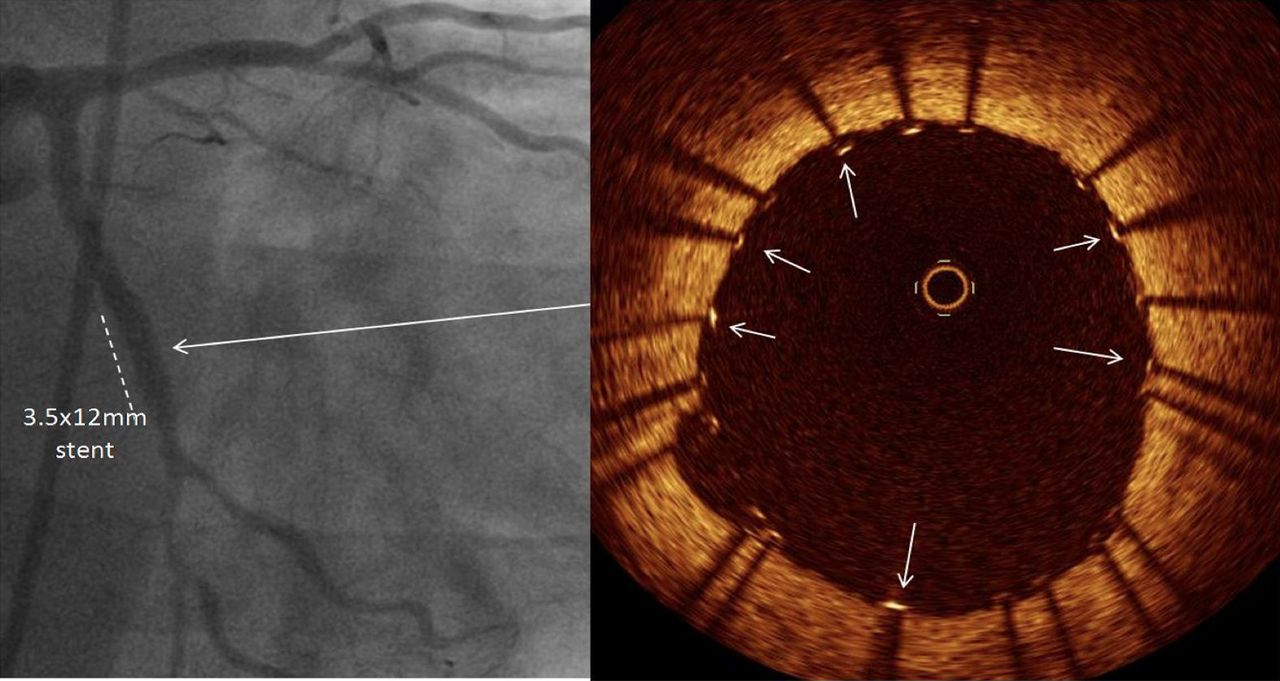 The Invasive Assessment Of Coronary Atherosclerosis And