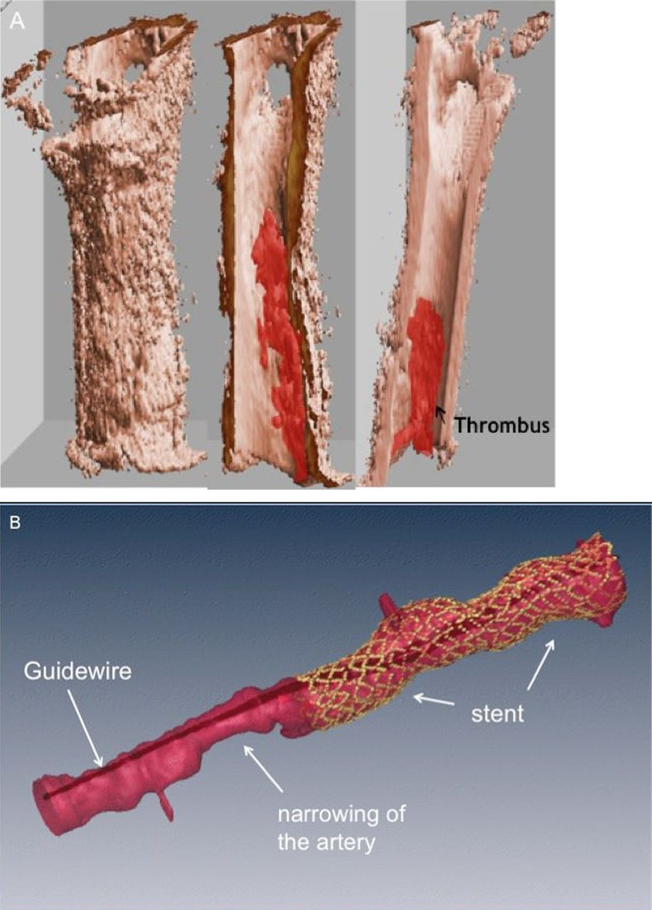 The Invasive Assessment Of Coronary Atherosclerosis And Stents Using Optical Coherence