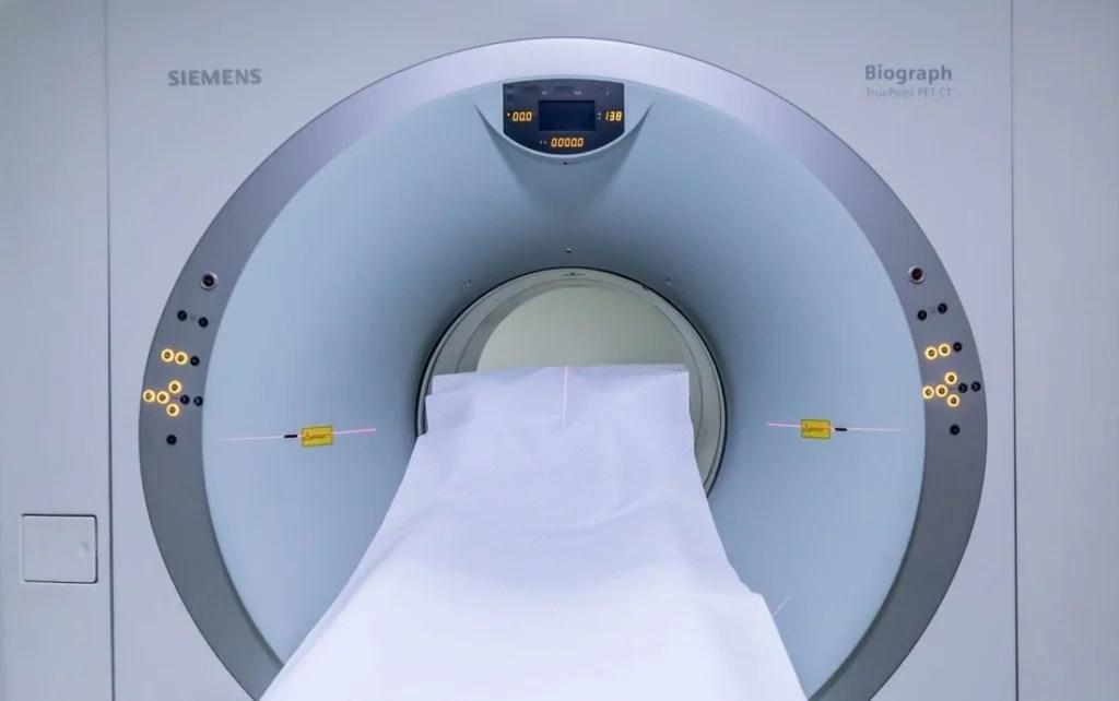 MRI検査で血栓を調査