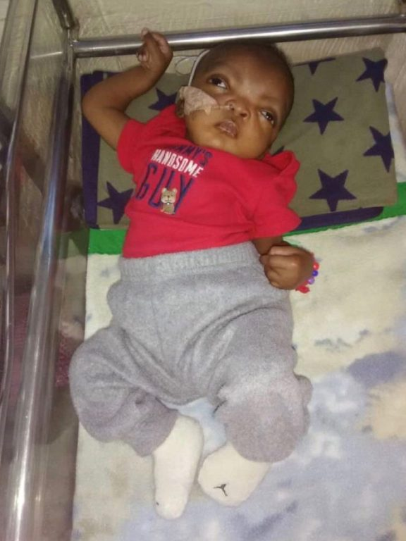 Baby Wisler with ng tube in hospital in Haiti.