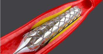 stent price capping