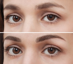 brow-before-and-after