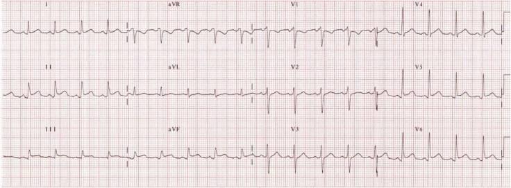 percarditis