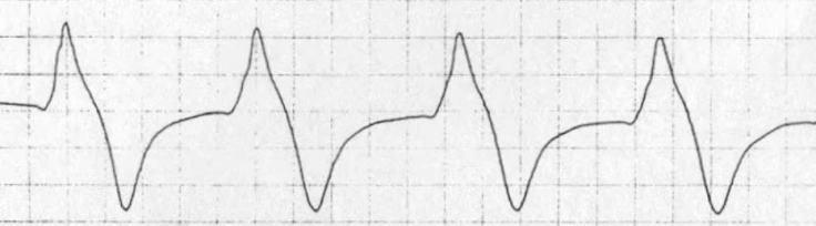 sinuswaves