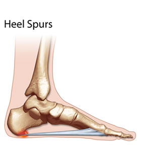 Painful Heel