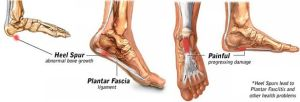 Heel Spur Symptoms & Treatments | Heel That Pain