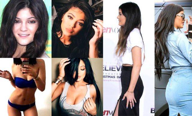 Kylie Jenner's lips enhancement
