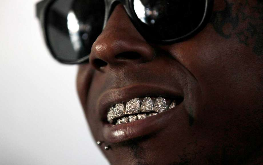 Lil Wayne's teeth dp