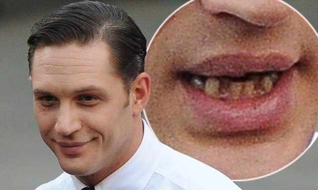 Tom Hardy's wife teeth