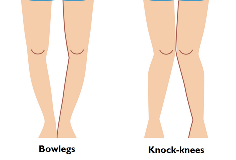 bowlegs knock knees