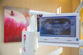 welcome_dental_image_kepek (9 of 35)