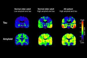 Brain Pet Scan Alzheimer's Disease