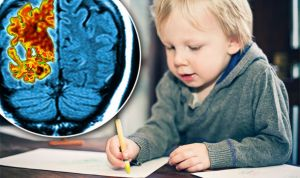 Alzheimer's Study in Children proved it can be spotted as early as 3 years.