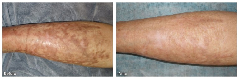 dermaroller-scar-1-PRINT