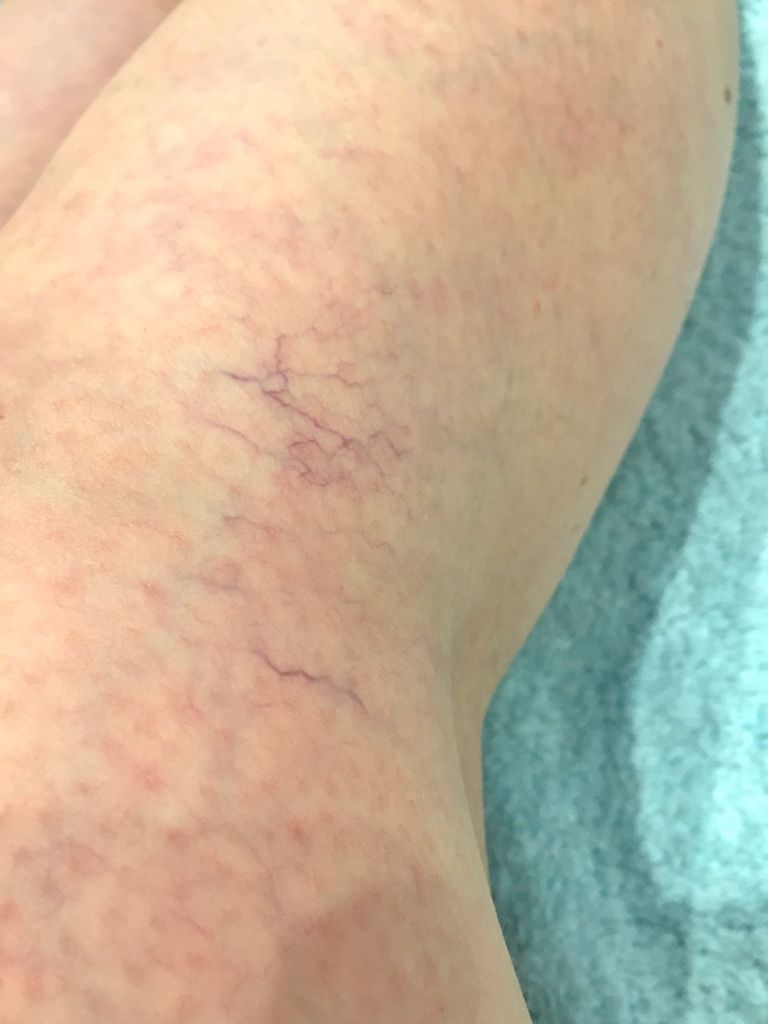 Thread vein treatment