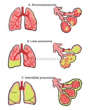 Bronchopneumonia  Symptoms, Pathophysiology, Diagnosis