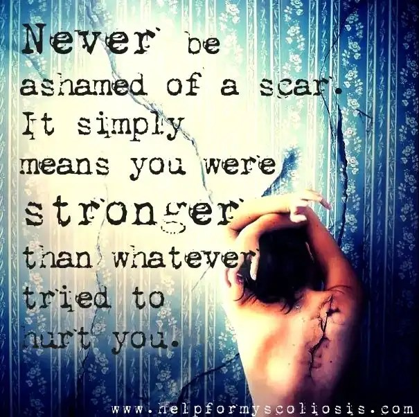 scoliosis-scar-quote-never-be-ashamed