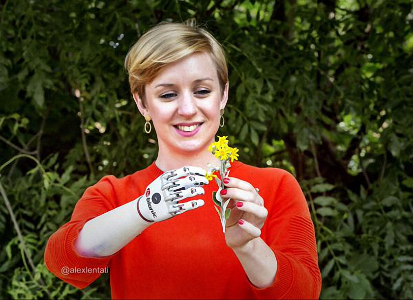 Bionic Prosthetic Hand For The 21st Century