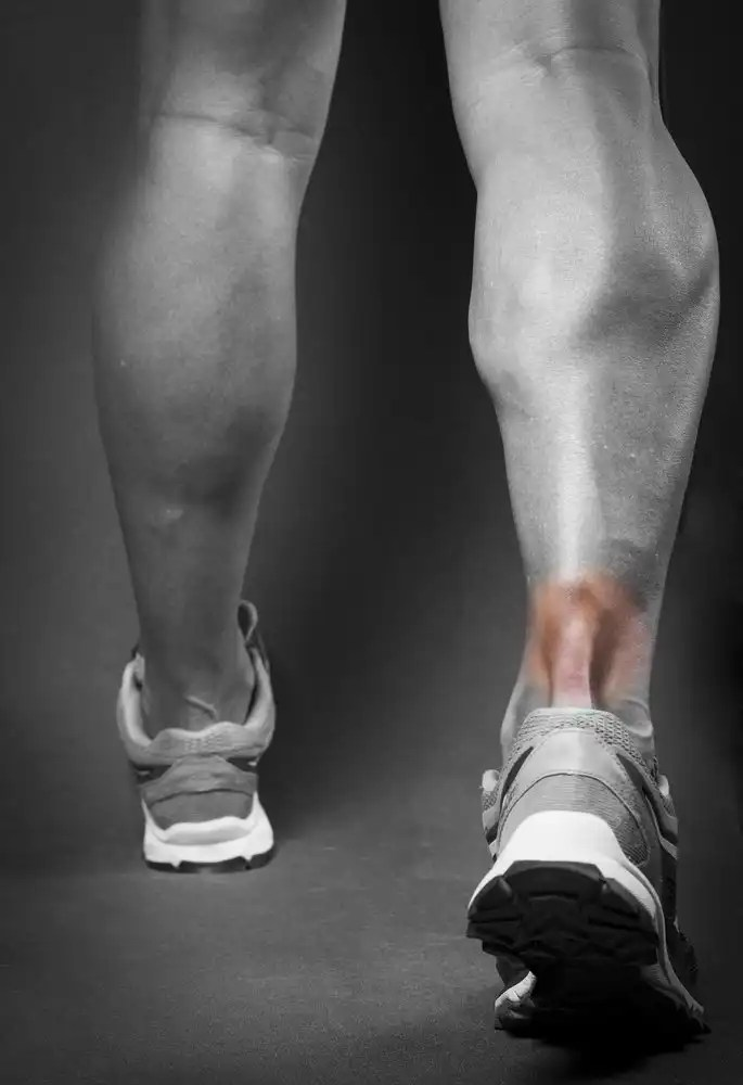 achilles tendon pain