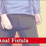 Fistule anale cronicizate