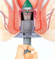 hemoroidectomia