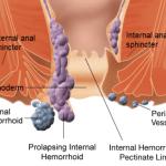 Tipuri de operatii hemoroizi