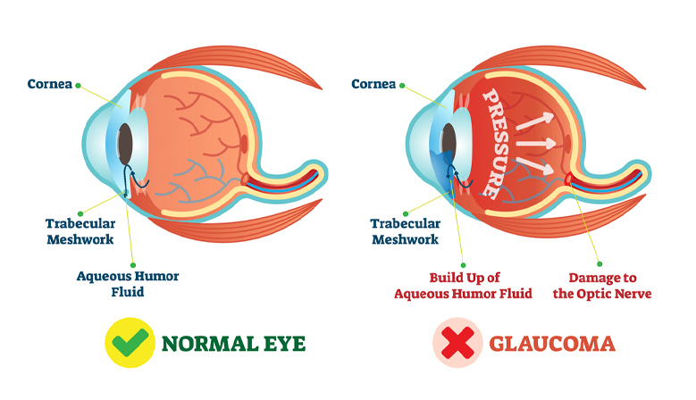 Saland Vision Diagram Of The Eye Dallas
