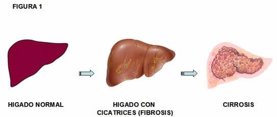 cirrosisfibrosishigadohepatica