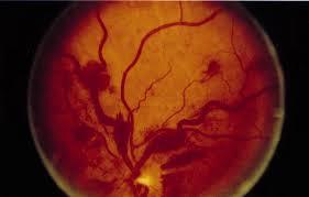 Waldenstrom's Macroglobulinemia