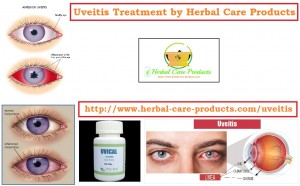 Natural Herbal Treatment for Uveitis Symptoms and Causes ...