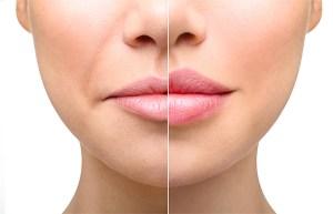 Read more about the article Zoom sur l'acide hyaluronique !