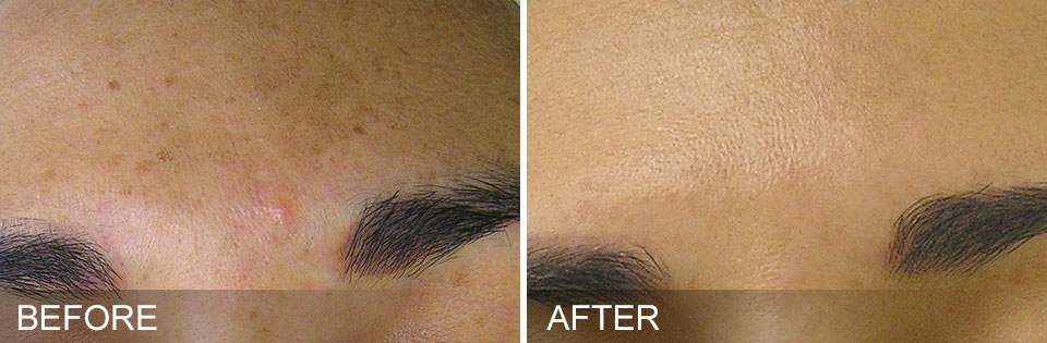 Before and After HyrdaFacial Brown Spot Removal Colleyville