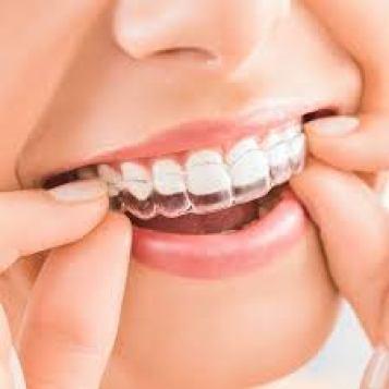 Mississauga Orthodontist