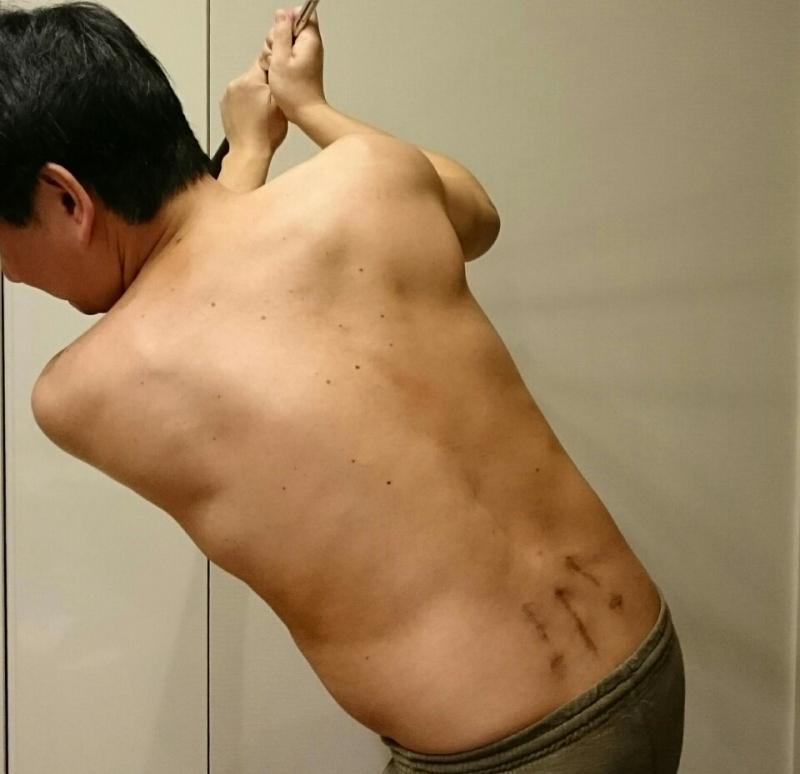 手術後1年経過!椎間板ヘルニア固定術のリスクへの質問