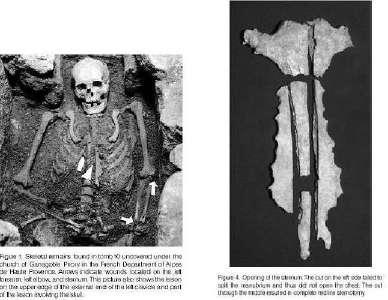 Skelett mit Schwertverletzungen und eröffnetem Brustbein (rechte Abb.) eines Ritters aus dem Friedhof des Klosters Ganagobie/Frankreich