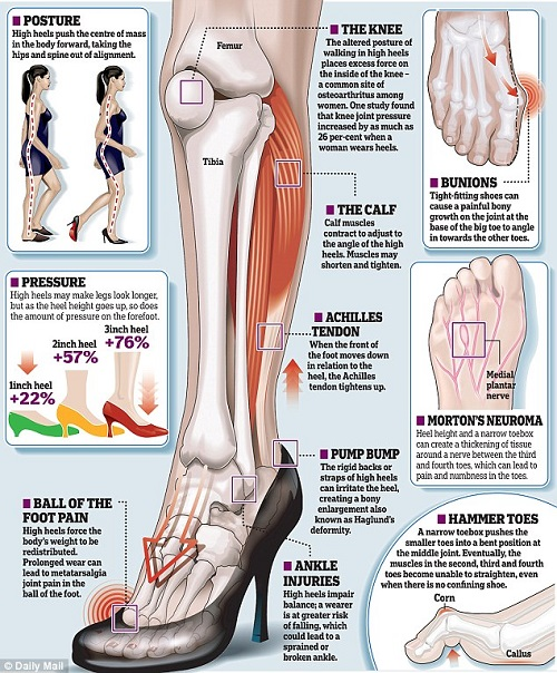 spine, high heels, beauty, posture, back problems, high heel style, shoes