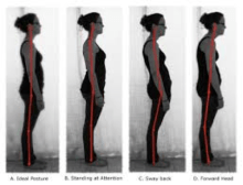 What Is So Bad About Poor Posture?