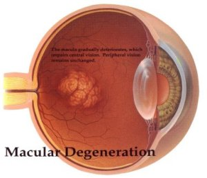 macular_degeneration-300x2581
