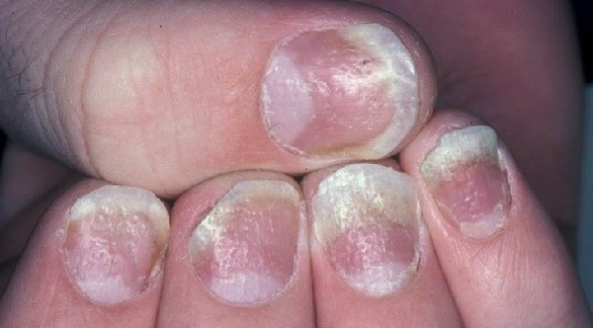 Media File 5 Nail Psoriasis With Pitting Image Courtesy Of Hon Pak Md