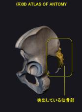 仙骨部側面