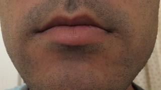 30代でさらに濃くなった青ヒゲ:男性ホルモンの影響