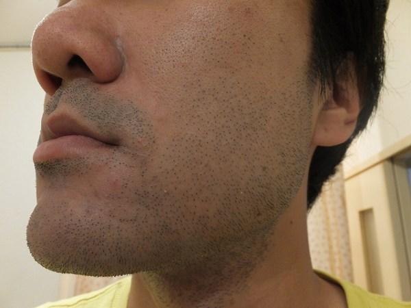青髭に悩まされる35歳独身男:レーザー脱毛決意