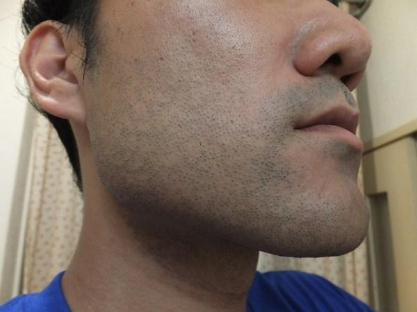 ゴリラクリニック体験記:レーザーヒゲ脱毛後の写真