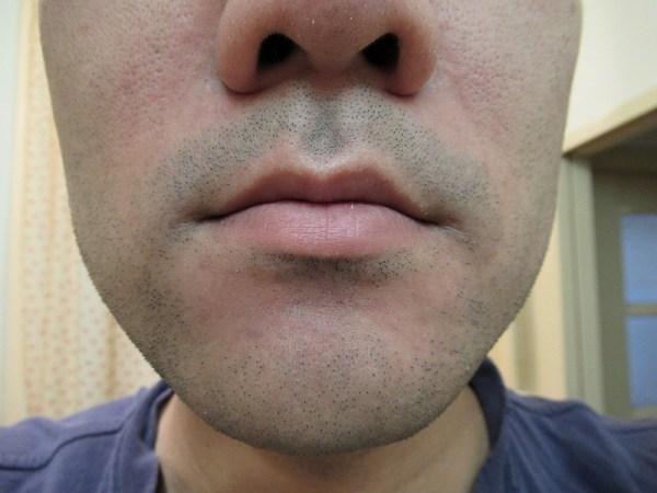 ラムダッシュ3枚刃で剃る前の鼻下ヒゲ