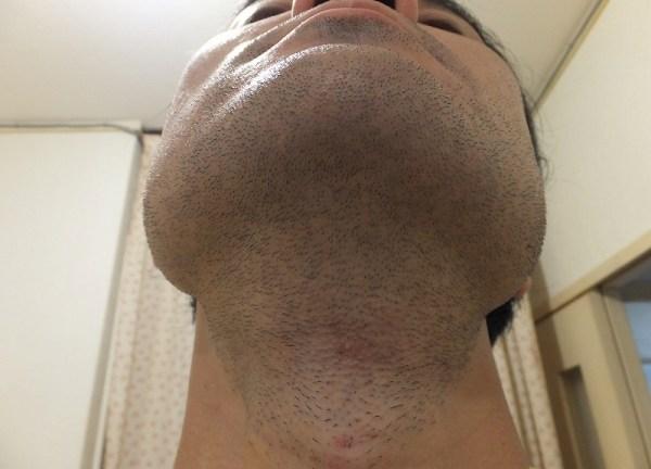 ヒゲそりがメンドクサイアゴした・首周りのヒゲ脱毛
