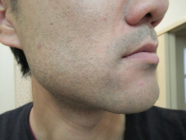 ブラウンシェーバー7でヒゲを剃る前のホホのヒゲ